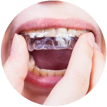 Planos de Relajación | PIO X | Laboratorio Dental CAD CAM